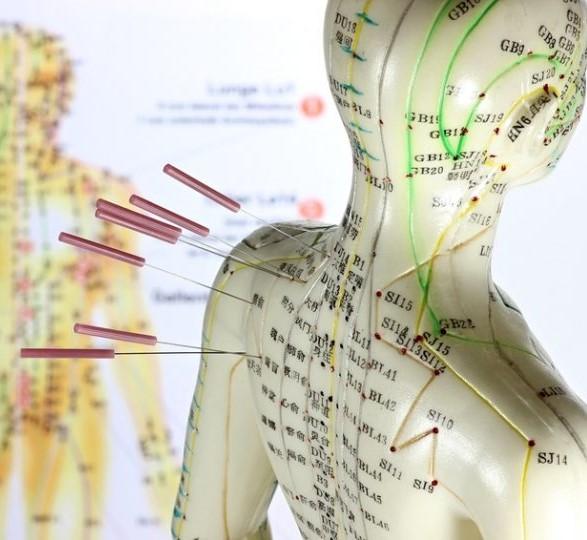 akupunktur frederiksberg